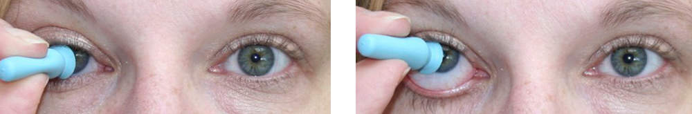 prosthetic eye care removing with suction cup