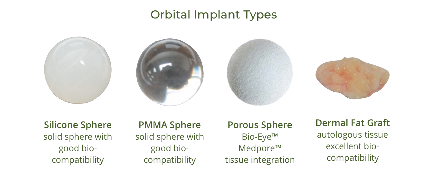 orbital implants diagram