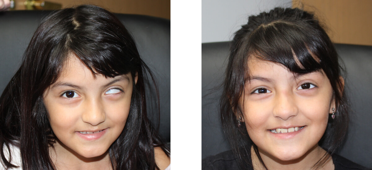 little girl with Scleral shells
