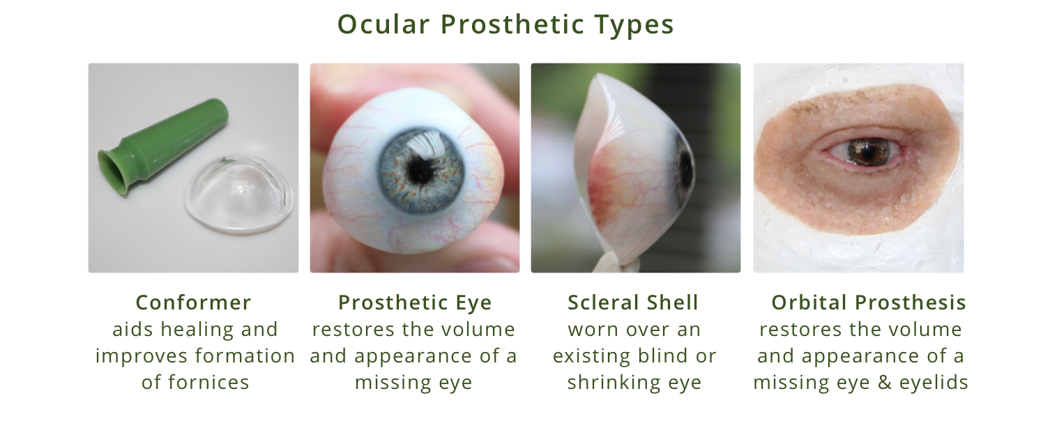 Ocular Prosthesis Types diagram